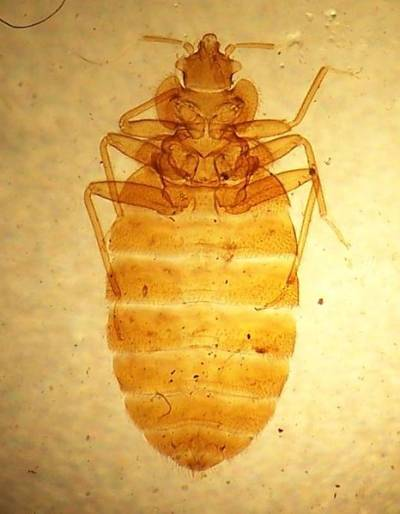 Microscopic bed bugs - photo#3